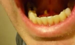 Είχε ένα φρικτό πρήξιμο κάτω από τη γλώσσα – Αντέχετε να δείτε τι βγήκε όταν άνοιξε το στόμα; (vid)
