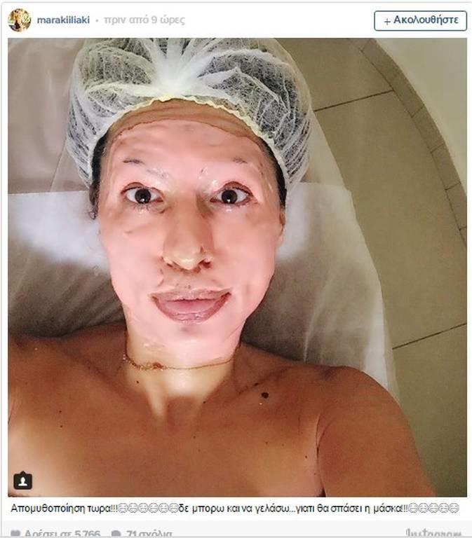 ΣΟΚ: Αγνώριστη χωρίς ρετούς η Μαρία Ηλιάκη! Τι έπαθε το πρόσωπό της; (photo)