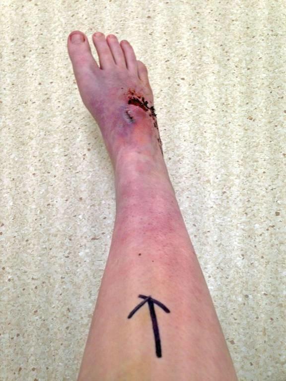 Ζήτησε από τους γιατρούς να της κόψουν το πόδι! Ο λόγος; Θα σας παγώσει το αίμα! (σκληρές εικόνες)