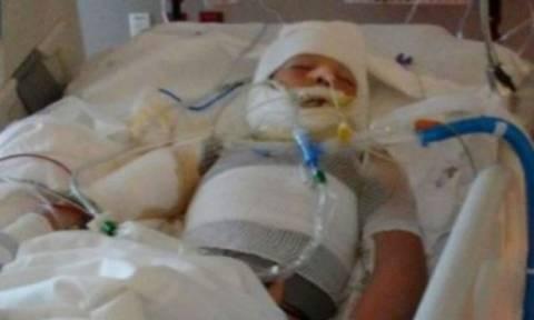 Φρίκη: Περιέλουσαν 10χρονο με βενζίνη και του έβαλαν φωτιά (Προσοχη! Σκληρές εικόνες)