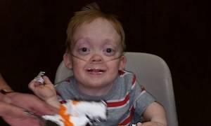 Θα δακρύσετε! 13χρονος με σπάνια πάθηση δώρισε τα δώρα γενεθλίων του σε άρρωστα παιδιά