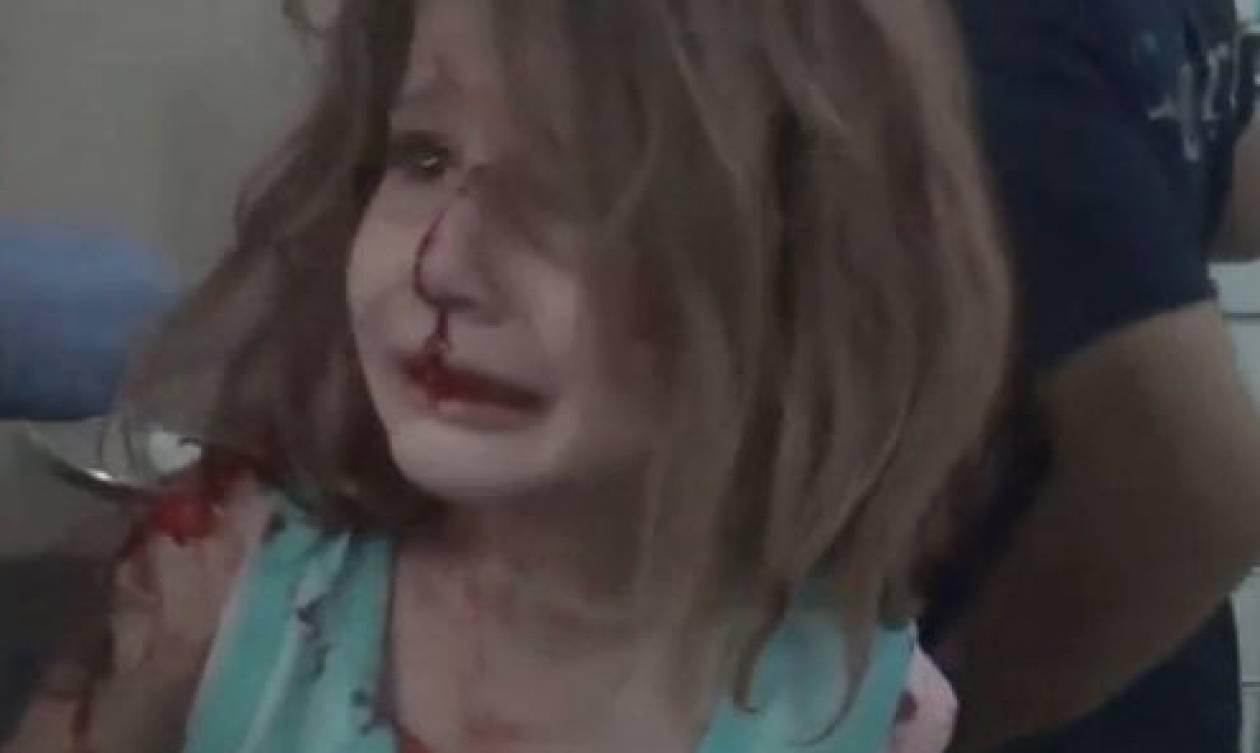 Συγκλονιστικές εικόνες από τη Συρία: Τραυματισμένο κοριτσάκι ψάχνει τον πατέρα της (vid)