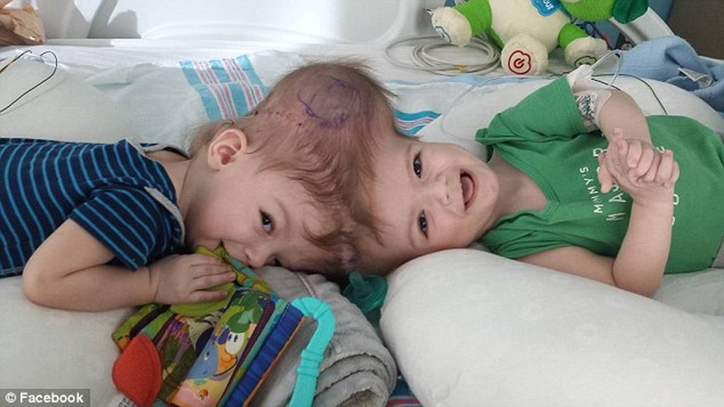 ΗΠΑ: Χώρισαν σιαμαία αγοράκια 13 μηνών που ήταν ενωμένα στο κεφάλι (pics)