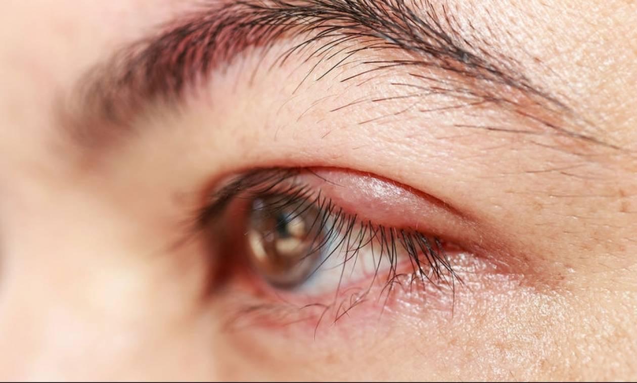 Κριθαράκι στο μάτι: Πότε πρέπει να επισκεφτείτε γιατρό