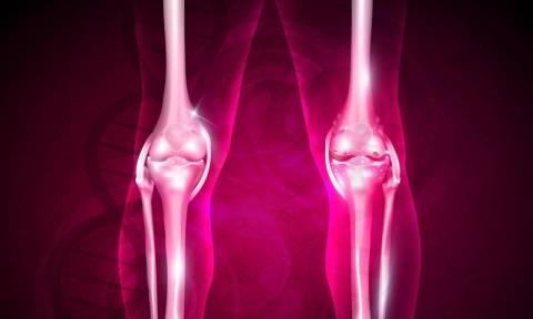 Δυνατά οστά και γυναίκες: Δείτε τι πρέπει να τρώτε