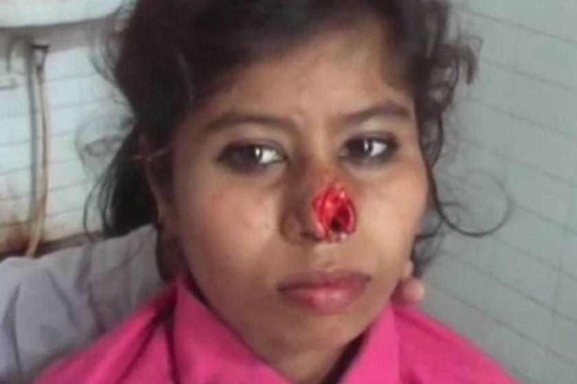 ΣΚΛΗΡΕΣ ΕΙΚΟΝΕΣ: Οι γονείς της δεν του πήραν μοτοσικλέτα και αυτός της έκοψε τη μύτη με τα δόντια
