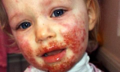 «Σαρκοφάγος» ιός τρώει το πρόσωπο αυτού του κοριτσιού. Πώς κόλλησε θα σας σοκάρει ακόμα περισσότερο!