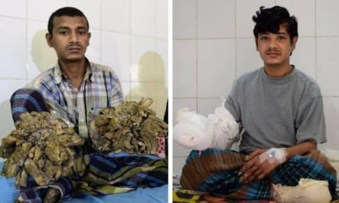 Μπαγκλαντές: Απέκτησε και πάλι χέρια ο «άνθρωπος-δέντρο» (vid)