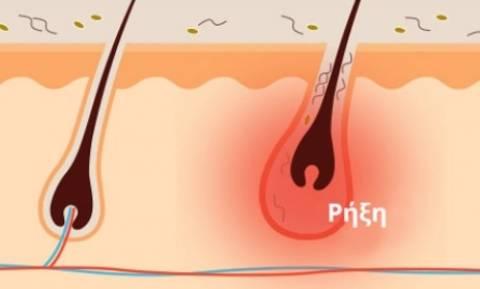 Τι είναι η «ανάστροφη ακμή» - Συμπτώματα και θεραπεία
