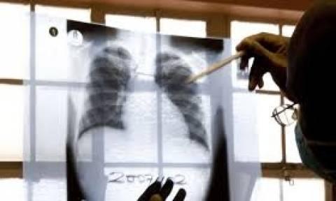 Φρικιαστικό: Γονείς δηλητηρίασαν και μαχαίρωσαν τα παιδιά τους επειδή είχαν φυματίωση