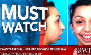 Την κορόιδευαν οι συμμαθητές της για τα δόντια της! Σήμερα παίρνει την πιο γλυκιά εκδίκηση (video)