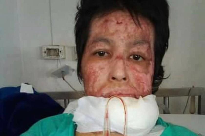 Φρίκη: Περιέλουσε με πετρέλαιο τη γυναίκα του και της έβαλε φωτιά γιατί τη ζήλευε (pics)