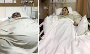 Ινδία: Η πιο παχύσαρκη γυναίκα στον κόσμο έχασε 100 κιλά με χειρουργική επέμβαση