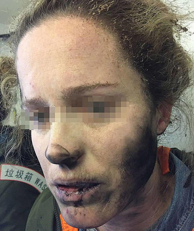 Τρομακτικτό ατύχημα: Εξερράγησαν τα ακουστικά στο πρόσωπό της εν μέσω πτήσης (pics)