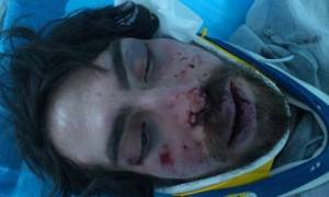 University student hospitalized after being beaten, possibly by Golden Dawn members