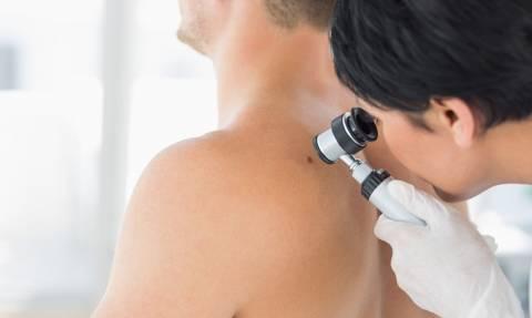 Μελάνωμα: Δωρεάν έλεγχοι για την πρόληψη του καρκίνου του δέρματος