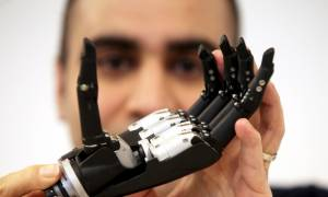 To πρώτο βιονικό χέρι με τεχνητή νοημοσύνη που... βλέπει και πιάνει μόνο του! (videos)