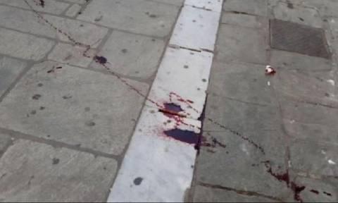 ΠΑΟΚ-ΑΕΚ: Αιματηρή συμπλοκή οπαδών στο Βόλο (pics)