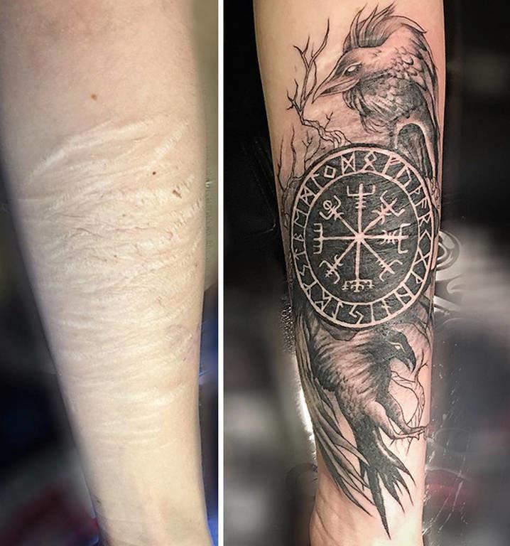 Viral: 30 εντυπωσιακά τατουάζ που μετατρέπουν τις ουλές σε έργα τέχνης