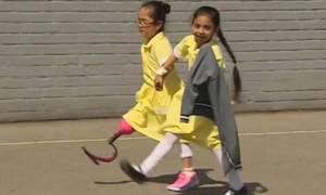 Η συγκινητική στιγμή μιας μαθήτριας όταν επιστρέφει στο σχολείο με το προσθετικό της πόδι