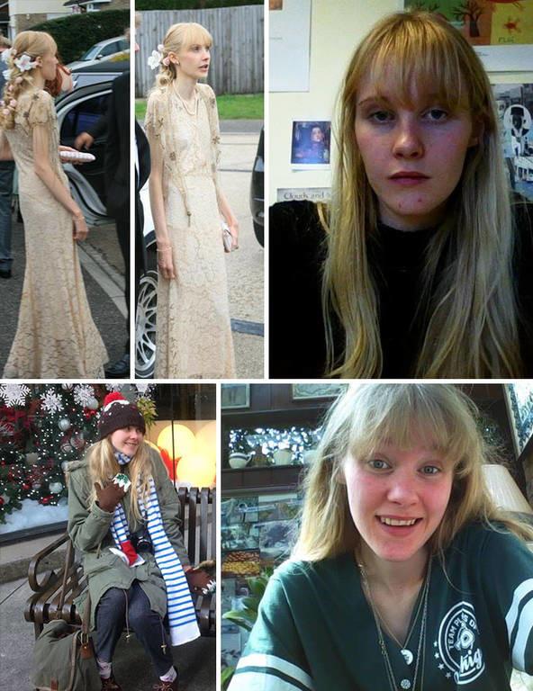 Η δύναμη της θέλησης: 50 «πριν και μετά» φωτογραφίες που θα σας πείσουν ότι όλα είναι δυνατά
