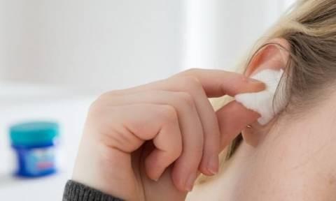 Πήγε στο νοσοκομείο με πονοκέφαλο! Με αυτό που έβγαλε απ' το αυτί της έπαθε σοκ και ο γιατρός (vid)