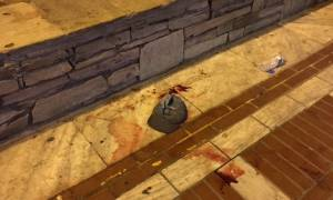 Θεσσαλονίκη: Μαχαίρωσαν 20χρόνο σε κεντρική πλατεία