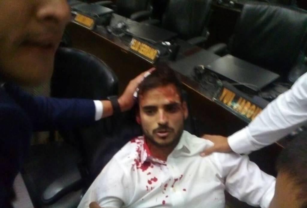Βενεζουέλα: Αιματηρή εισβολή οπαδών του Μαδούρο στο κοινοβούλιο (pics)