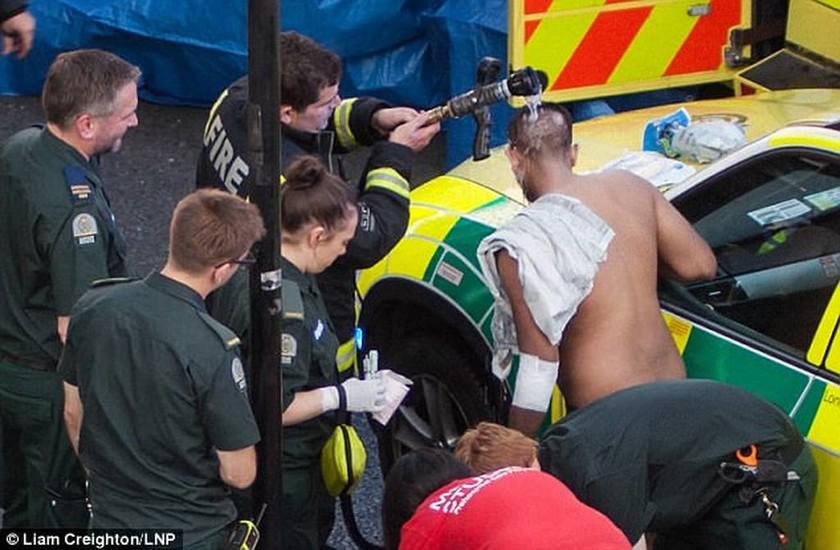 Τρόμος στο Λονδίνο: Άγνωστοι επιτέθηκαν σε εφήβους ρίχνοντάς τους οξύ στο πρόσωπο (photos & vid)