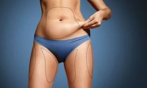 Δείτε αν είστε μεταβολικά υγιείς από τον σωματότυπό σας