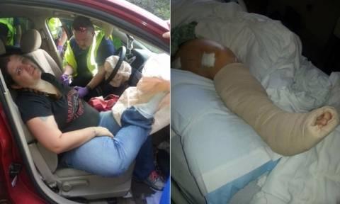 Συγκλονιστική μαρτυρία: Να γιατί δεν πρέπει να βάζεις το πόδι σου στο ταμπλό του αυτοκινήτου