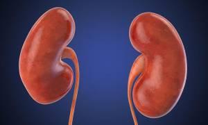 Πέτρα στο νεφρό: Γιατί είναι πιθανότερη το καλοκαίρι