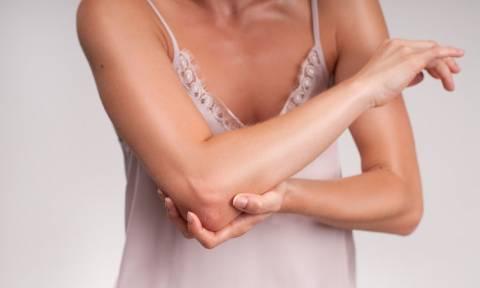 Υγεία οστών: Τα 5 απαραίτητα θρεπτικά στοιχεία για να προλάβετε την οστεοπόρωση