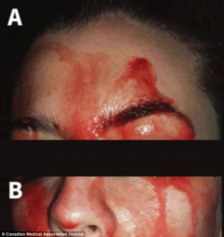 Ανατριχίλα! Γυναίκα γεμίζει με αίματα στο πρόσωπο όταν ιδρώνει - ΠΡΟΣΟΧΗ: ΣΚΛΗΡΕΣ ΕΙΚΟΝΕΣ