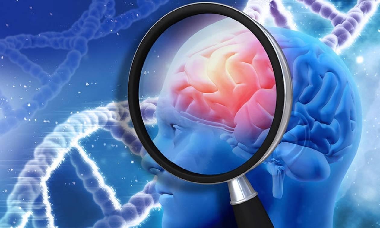 Αλτσχάιμερ: Ο ρόλος της ζάχαρης στην ανάπτυξη της νόσου