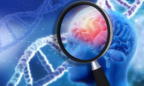 Ατροφία εγκεφάλου: Με ποια έλλειψη βιταμινών συνδέεται