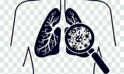 Πνευμονία: Τρόποι μετάδοσης, συμπτώματα, αντιμετώπιση