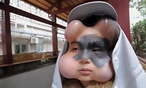 Της έβαλαν 4 «μπαλόνια» στο πρόσωπο για να της σώσουν τη ζωή (pics&vid)