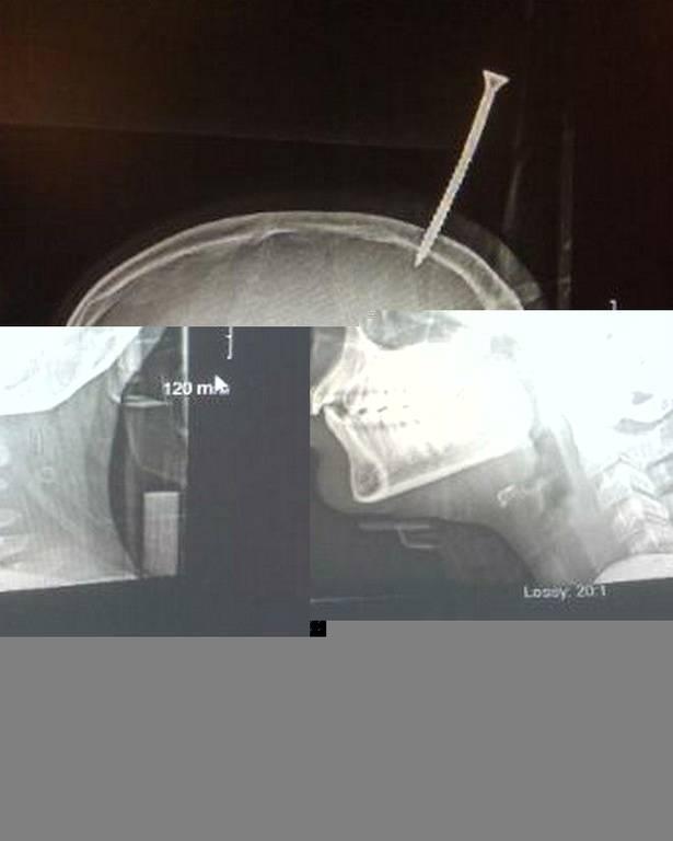 Σοκαριστικό ατύχημα: Βίδα καρφώθηκε στο κεφάλι 13χρονου (ΣΚΛΗΡΕΣ ΕΙΚΟΝΕΣ)