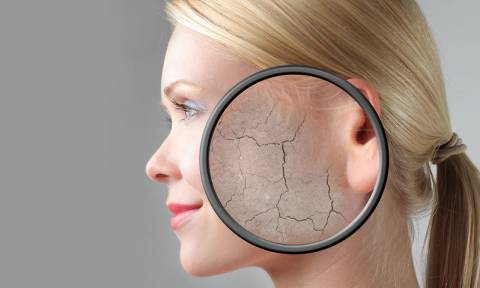 Σκασμένο δέρμα τον χειμώνα: Tips για να το κρατήσεις ενυδατωμένο και υγιές