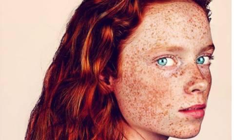 Υπέροχα πορτρέτα ανθρώπων με φακίδες, που αναδεικνύουν τη μοναδική ομορφιά τους