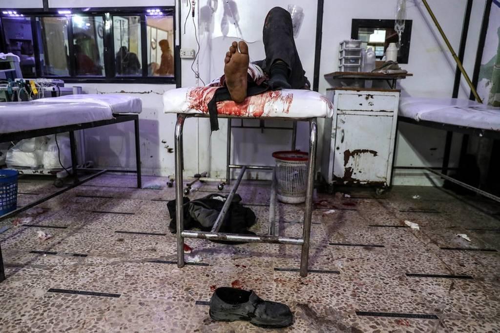 «Λουτρό αίματος» στη Συρία: 250 άμαχοι νεκροί μέσα σε 48 ώρες (ΠΡΟΣΟΧΗ! ΣΛΗΡΕΣ ΕΙΚΟΝΕΣ)