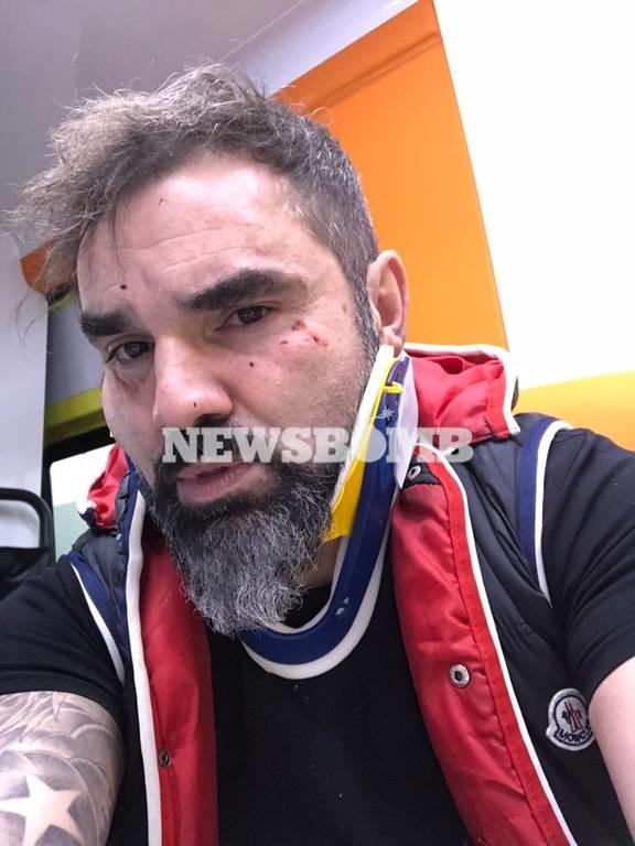 Εκτακτο: Θύμα δολοφονικής επίθεσης ο Νάσος Γουμενίδης (video+pics)