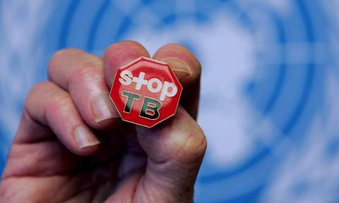 ΚΕΕΛΠΝΟ - ΕΚΠΑ: «Καμπανάκι» για τη φυματίωση – Παραμένει πρόβλημα δημόσιας υγείας