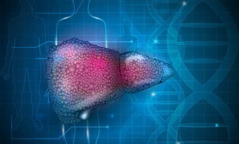 Κίρρωση: 4 σημάδια της δυνητικά θανατηφόρας βλάβης στο συκώτι