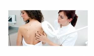 Δωρεάν εξετάσεις σε όλη τη χώρα στο πλαίσιο της Ελληνικής Εβδομάδας κατά του Καρκίνου του Δέρματος