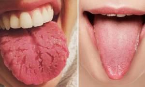 Πήγαινε τώρα σε έναν καθρέφτη και κοίτα τη γλώσσα σου. Αν είναι έτσι πρέπει να πας ΑΜΕΣΩΣ σε γιατρό!
