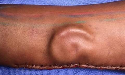 Έχασε το αυτί της και της… φύτρωσαν ένα νέο στο χέρι! (pics+vid)