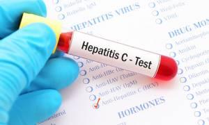 Ποιοι πρέπει να ελεγχθούν για ηπατίτιδα C - Ο ΕΟΠΥΥ θα τους ειδοποιεί μέσω ΗΔΙΚΑ