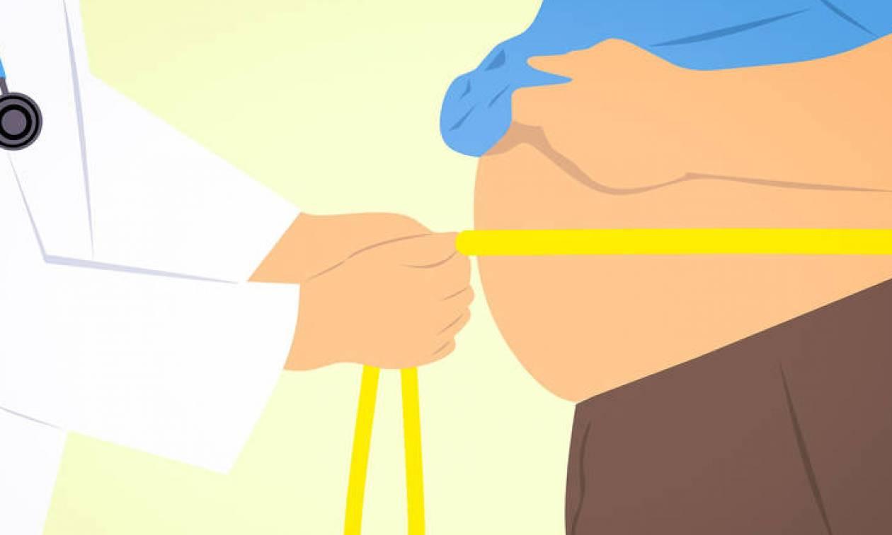 Δώδεκα μορφές καρκίνου συνδέονται με την παχυσαρκία